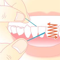 プラーク・歯石の除去