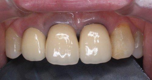 差し歯 前歯